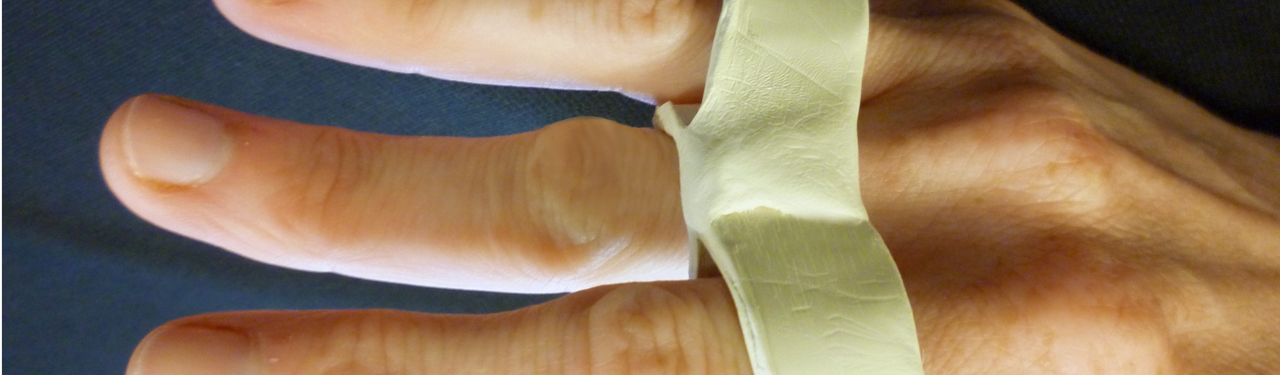 Using a Relative Motion Orthosis when Treating a Boutonniere Injury