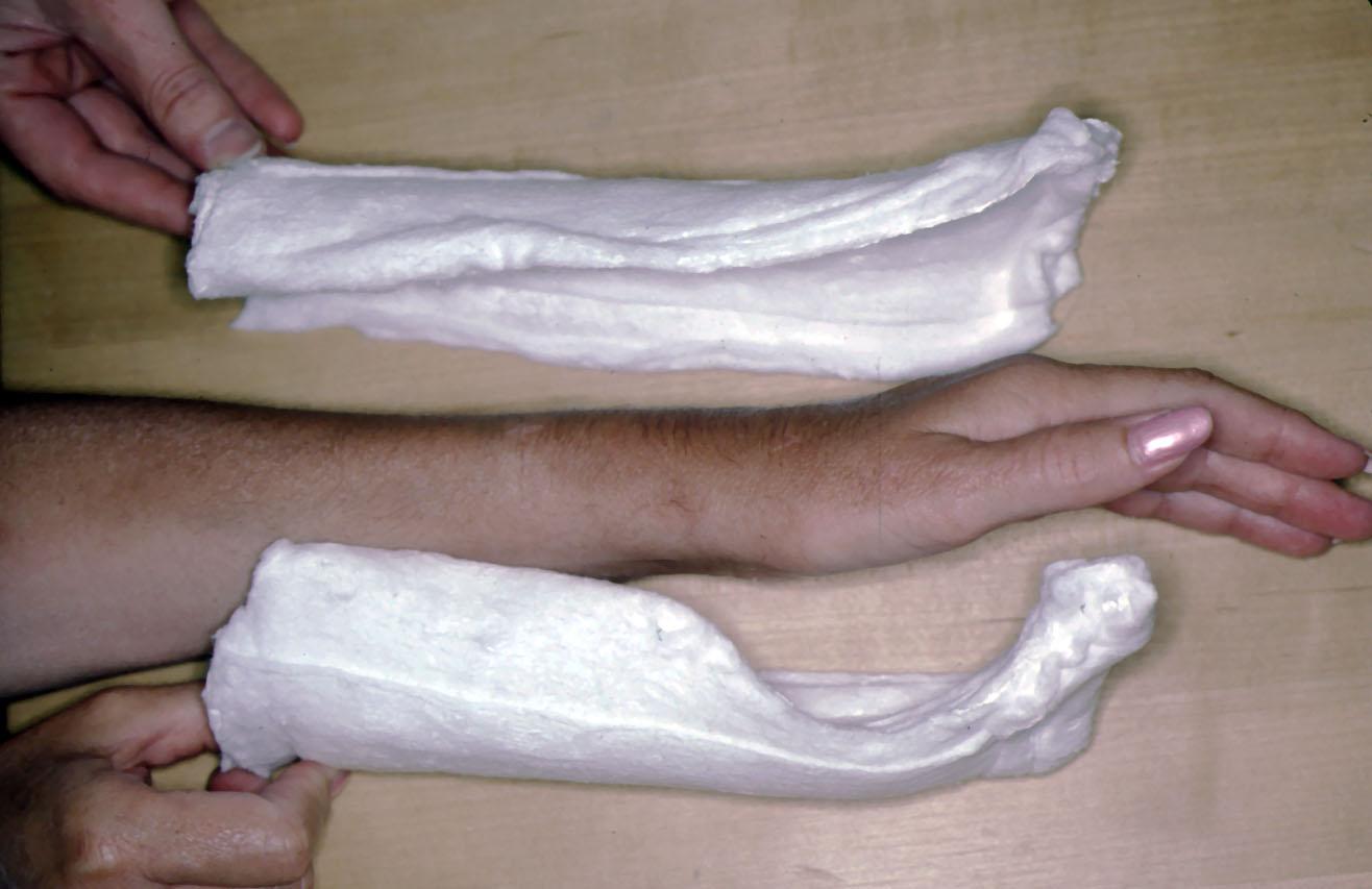 Plaster of Paris: The Forgotten Hand Splinting Material