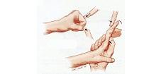 Therapist's Management of the Stiff Hand